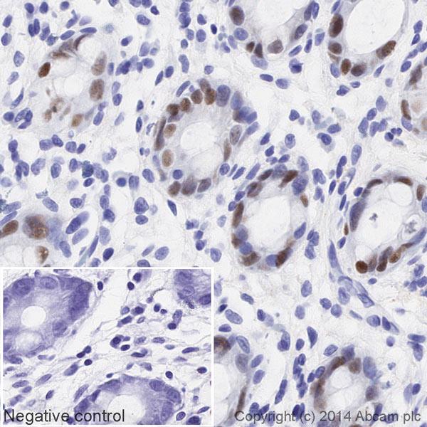 Immunohistochemistry (Formalin/PFA-fixed paraffin-embedded sections) - Anti-SOX9 antibody [EPR14335] (HRP) (ab195550)