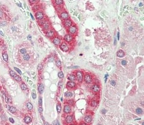 Immunohistochemistry (Formalin/PFA-fixed paraffin-embedded sections) - Anti-Calpain 1 antibody (ab195655)