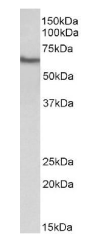 Western blot - Anti-GGT1 antibody - N-terminal (ab195662)