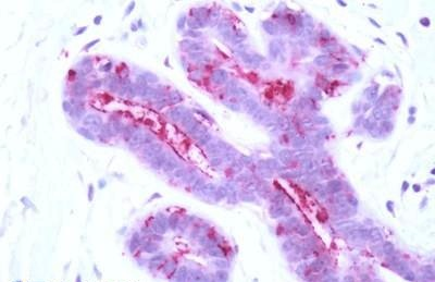 Immunohistochemistry (Formalin/PFA-fixed paraffin-embedded sections) - Anti-Proteinase Activated Receptor 3 antibody - C-terminal (ab195797)