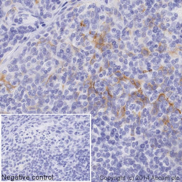 Immunohistochemistry (Formalin/PFA-fixed paraffin-embedded sections) - Anti-CD8 antibody [EP1150Y] (HRP) (ab195899)