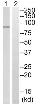 Western blot - Anti-ADAM32 antibody (ab196767)