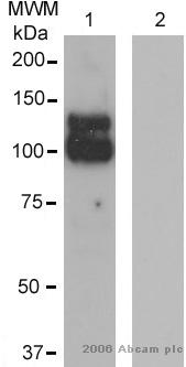 Western blot - ADAM17 antibody (ab2051)