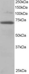 Western blot - Anti-RanGAP1 antibody (ab2081)