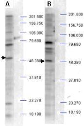 Western blot - Anti-SH3BP2 (phospho S427) antibody (ab2176)
