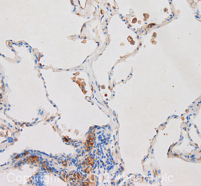 Immunohistochemistry (Formalin/PFA-fixed paraffin-embedded sections) - Anti-CD9 antibody [MEM-61] (ab2215)