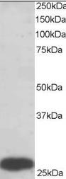 Western blot - Anti-PGAM1 antibody (ab2220)