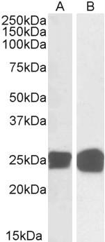 Western blot - Anti-GRB2 antibody (ab2234)