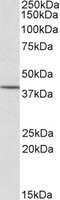 Western blot - Anti-PSCDBP antibody (ab2247)