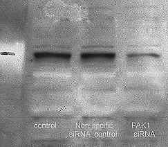 Western blot - Anti-PAK1 + PAK2 + PAK3 (phospho T423) antibody (ab2477)