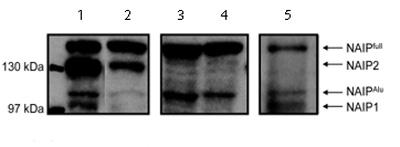 Western blot - Anti-NAIP antibody (ab2549)