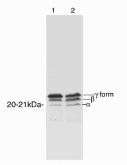 Western blot - Anti-eIF4EBP1 antibody (ab2606)