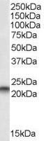 Western blot - Anti-PBP antibody (ab2634)