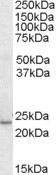 Western blot - Anti-KLF16 antibody (ab2718)