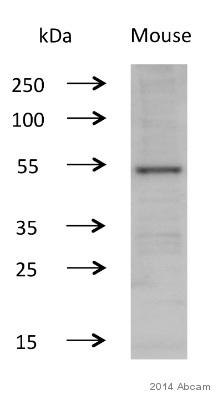 Western blot - Anti-CaMKII (phospho T286) antibody [22B1] (ab2724)