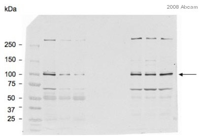 Western blot - Anti-Aryl hydrocarbon Receptor  antibody [RPT1] - ChIP Grade (ab2770)