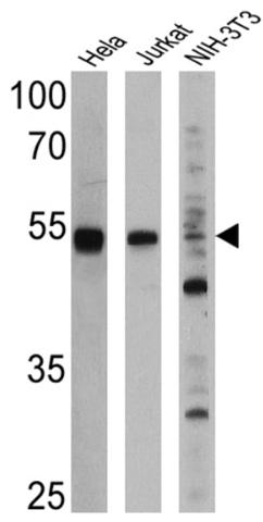 Western blot - Anti-PPAR alpha antibody [3B6/PPAR] - ChIP Grade (ab2779)