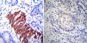 Immunohistochemistry (Formalin/PFA-fixed paraffin-embedded sections)-Anti-Hsp27 antibody [G3.1](ab2790)