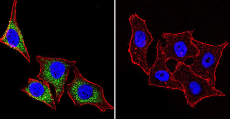 Immunocytochemistry/ Immunofluorescence - Anti-Hsp27 [G3.1] antibody (ab2790)