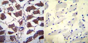 Immunohistochemistry (Formalin/PFA-fixed paraffin-embedded sections) - Anti-NFAT2 antibody [7A6] - ChIP Grade (ab2796)
