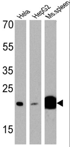 Western blot - Anti-p23 antibody [JJ3] (ab2814)