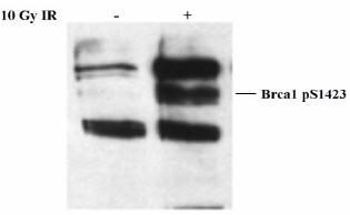 Western blot - Anti-BRCA1 (phospho S1423) antibody (ab2838)