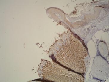 Immunohistochemistry (Formalin/PFA-fixed paraffin-embedded sections) - Anti-Hydrogen Potassium ATPase Beta antibody [2G11] (ab2866)