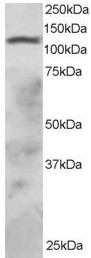 Western blot - Anti-RNF31/HOIP antibody (ab2919)