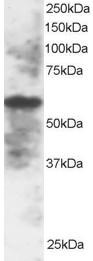 Western blot - Anti-IRF5 antibody - ChIP Grade (ab2932)
