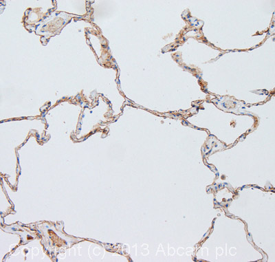 Immunohistochemistry (Formalin/PFA-fixed paraffin-embedded sections) - Anti-ICAM1 antibody [P1W16] (ab20144)