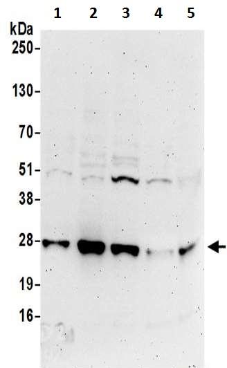 Western blot - Anti-DTD1 antibody (ab200559)
