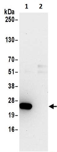 Immunoprecipitation - Anti-DTD1 antibody (ab200559)