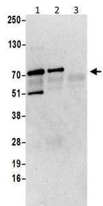 Immunoprecipitation - Anti-MSANTD2 antibody (ab202284)