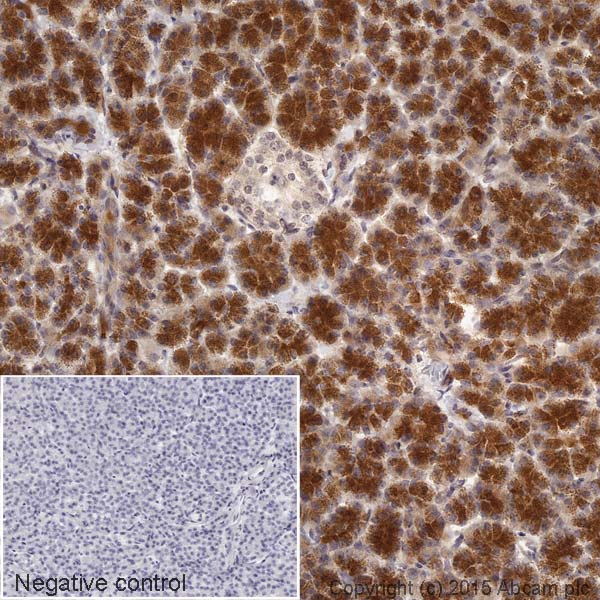 Immunohistochemistry (Formalin/PFA-fixed paraffin-embedded sections) - Anti-Furin antibody [EPR14674] (HRP) (ab202544)