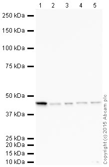 Western blot - Anti-ACADM antibody [EPR3708] (HRP) (ab203465)