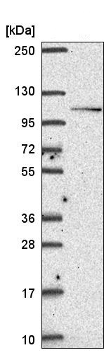 Western blot - Anti-Smoothelin antibody (ab204603)