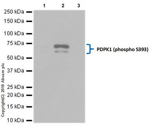 Immunoprecipitation - Anti-PDPK1 (phospho S393) antibody [EPR19818] (ab206340)