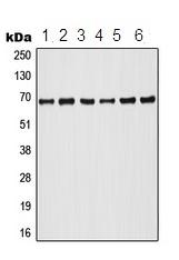 Western blot - Anti-A RAF (phospho Y302) antibody (ab208449)