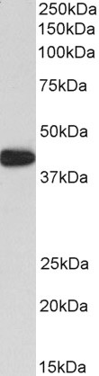Western blot - Anti-alpha smooth muscle Actin antibody (ab21027)