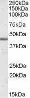 Western blot - alpha smooth muscle Actin antibody (ab21027)