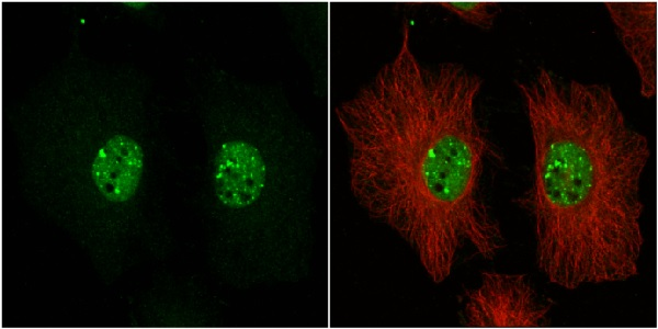 Immunocytochemistry/ Immunofluorescence - Anti-53BP1 antibody (ab21083)
