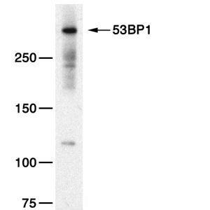 Western blot - Anti-53BP1 antibody (ab21083)