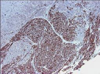 Immunohistochemistry (Frozen sections) - Anti-Smoothelin antibody [R4A] (ab21108)