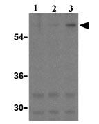 Western blot - Anti-TEM8 antibody (ab21269)
