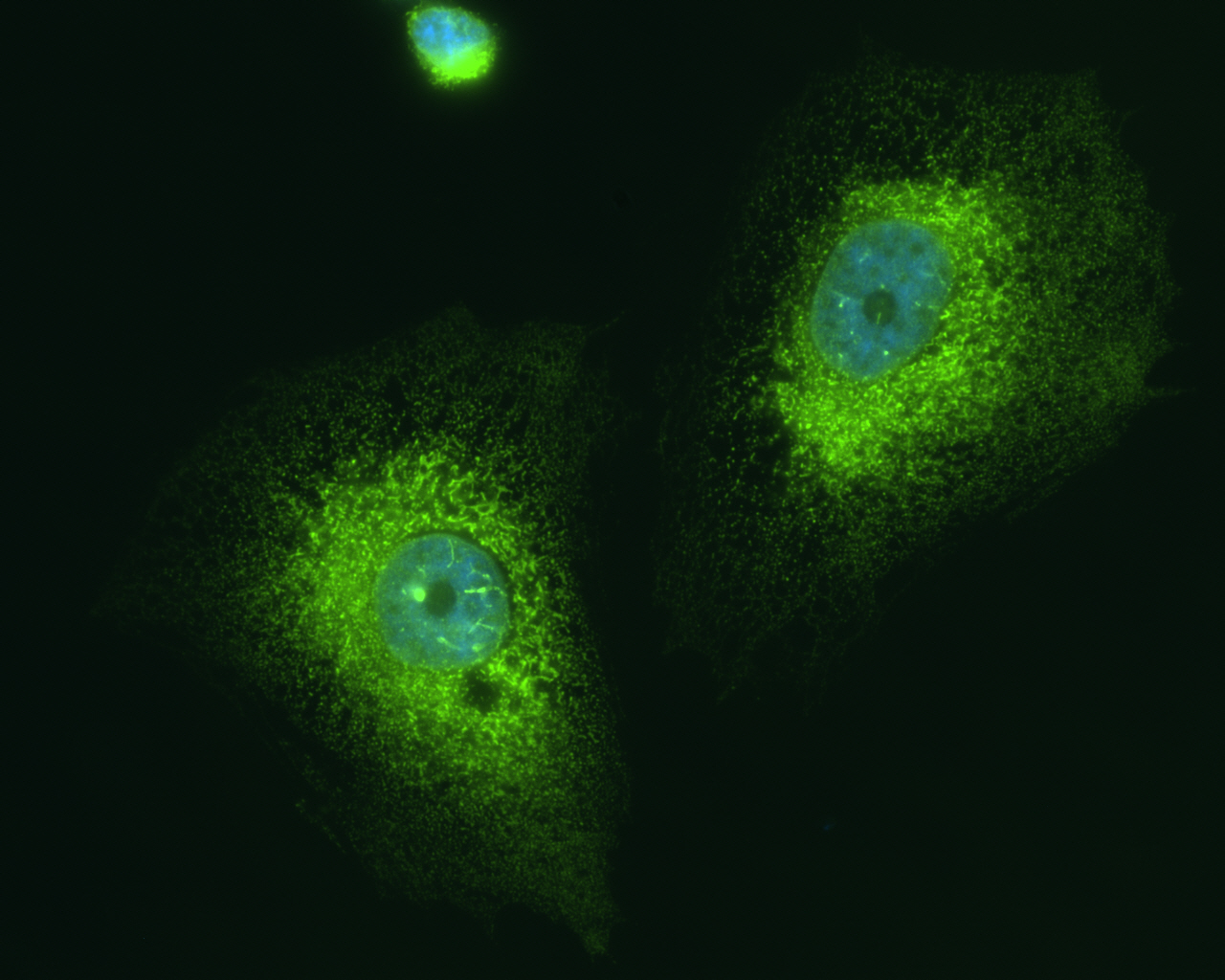 binding immunoglobulin protein 78