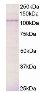 Western blot - Anti-BCAR3 antibody (ab21705)
