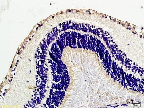 Immunohistochemistry (Formalin/PFA-fixed paraffin-embedded sections) - Anti-Caveolin-1 antibody (ab214448)