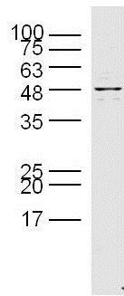 Western blot - Anti-Presenilin 1 antibody (ab216400)