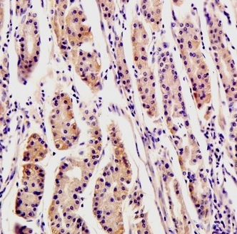 Immunohistochemistry (Formalin/PFA-fixed paraffin-embedded sections) - Anti-Osteopontin antibody (ab216406)