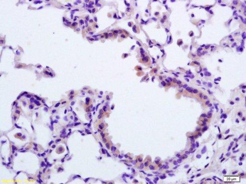Immunohistochemistry (Formalin/PFA-fixed paraffin-embedded sections) - Anti-APAF1 antibody (ab216415)